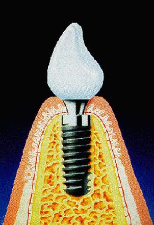 implantat-s
